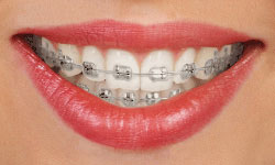 type-of-braces-1