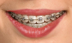 type-of-braces-2