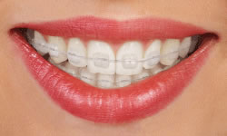 type-of-braces-3