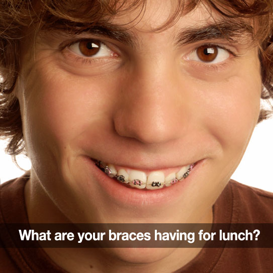 braces friendly lunches