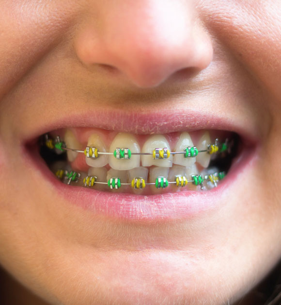 braces color picker